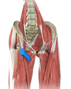 Direct Anterior Hip Replacement Carmel Ny Hip Surgery