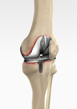 Revision Knee Replacement Carmel Ny Knee Replacement